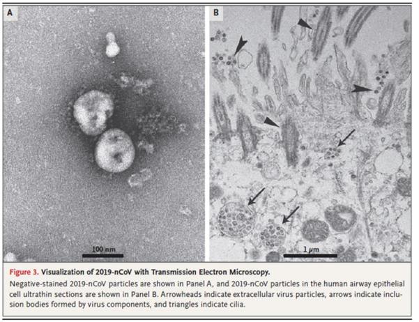 长治卫校贴吧:新冠病毒晶体组织